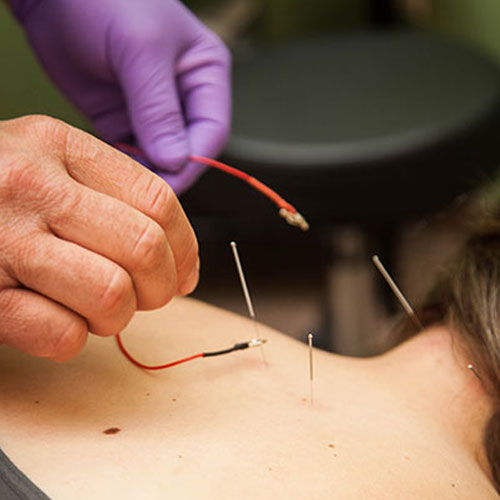 Dry Needling wasilla physical therapy
